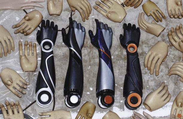 3D-gedruckte Prothesen