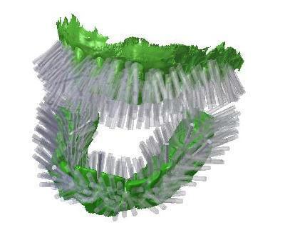 3D-gedruckte Blizzident Zahnbürste.