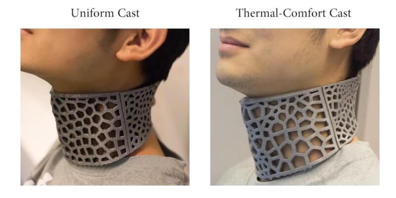 Gipsverband aus dem 3D-Drucker