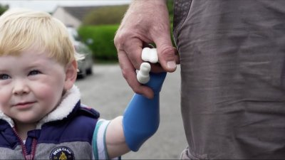 Armprothese für Baby