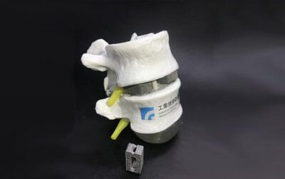 Implantat aus dem 3D-Drucker