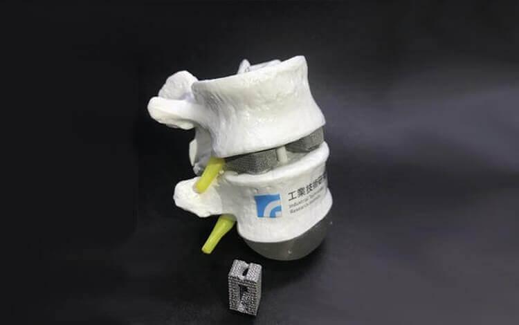In China bald Knochenimplantate aus dem 3D-Drucker auf dem Markt