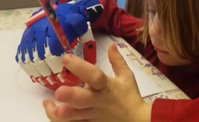 Handprothese aus dem 3D-Drucker