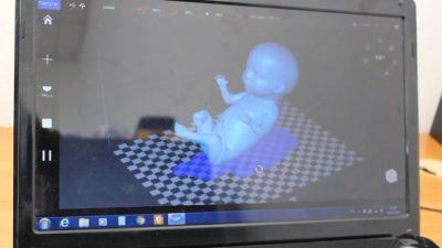 3D-Scan von einem Embryo