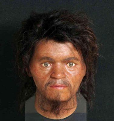 Gesichtsrekonstruktion mit 3D-Druck