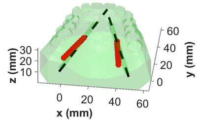 Abbildung Arterien im Mund