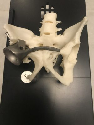 Hüftimplantat aus dem 3D-Drucker