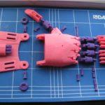 Beispiel einer Handprothesen in rosa