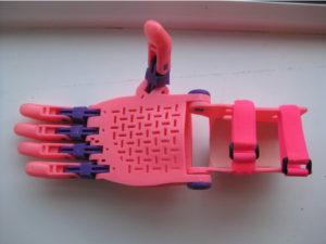 Beispiel Handprothese in rosa