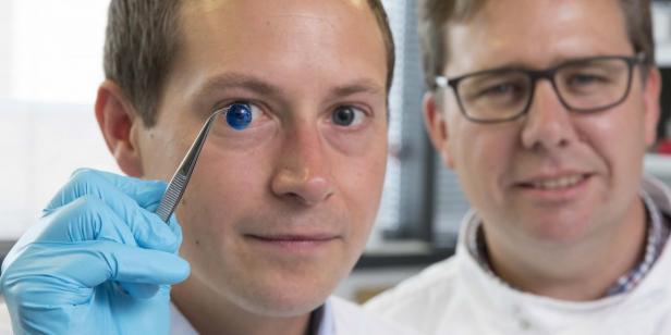 Einer der Wissenschaftler mit einer 3D-gedruckten Hornhaut