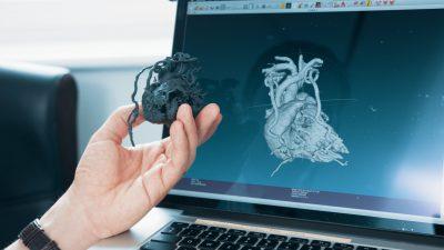 Person mit 3D-gedruckter Kopie vom Herzen vor Bildschirm mit Scan des Herzen