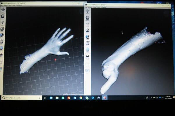 3D-Scan eines Arms
