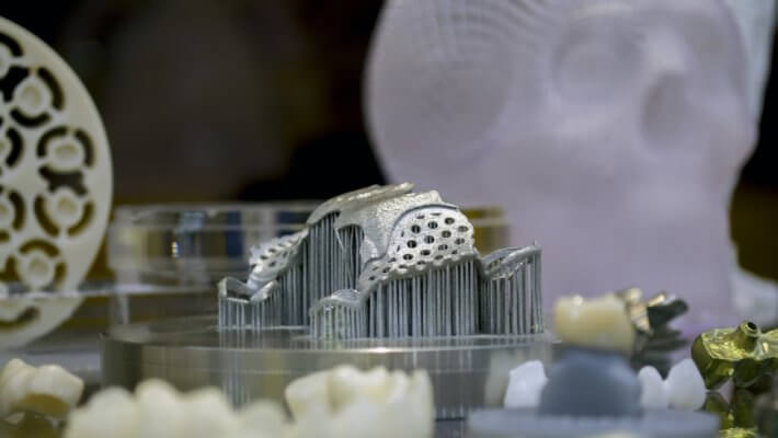 Kieferimplantat aus dem 3D-Drucker