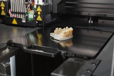 Zähne aus 3D-Drucker