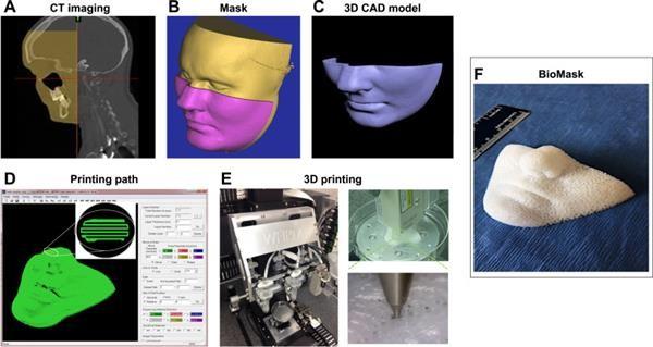 Biomaske aus dem 3D-Drucker
