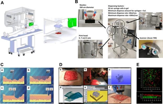 Mobiler 3D-Druck von Haut