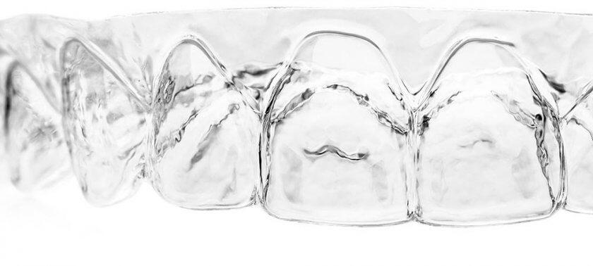 3D-gedruckte Aligner von Nivellmedical