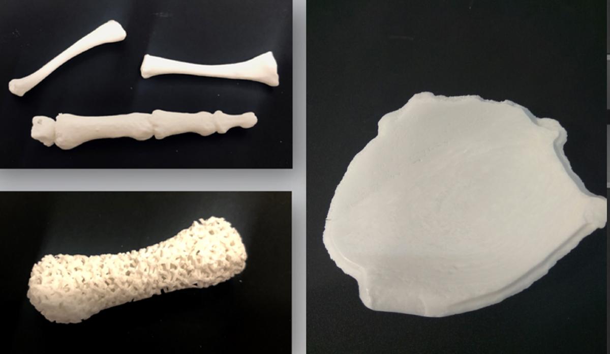 Rapid.Tech & FabCon 3.D startet 2019 neues Forum zu 3D-Druck in der Medizin-, Zahn- & Orthopädietechnik