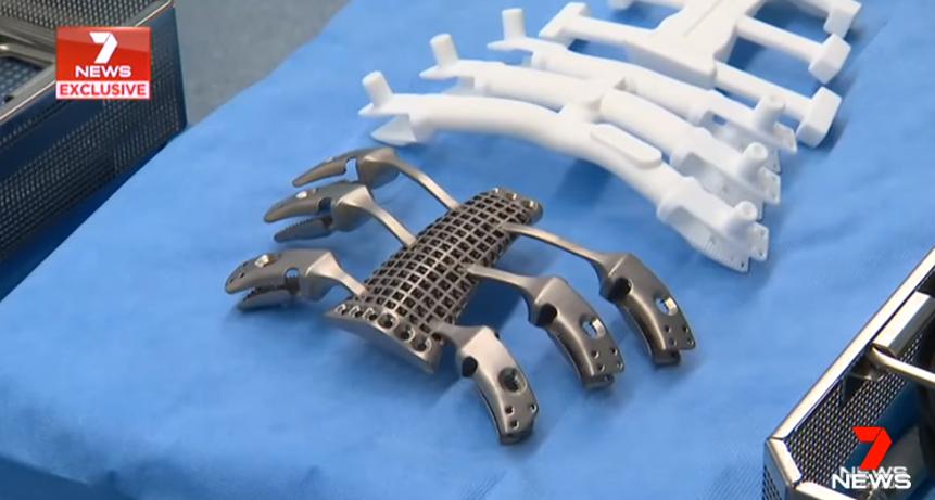 3D-gedrucktes Brustbein