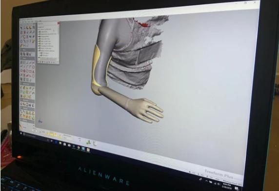 Scan Armprothese