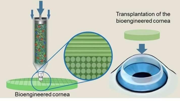 3D-gedrucktes Hornhauttransplantat
