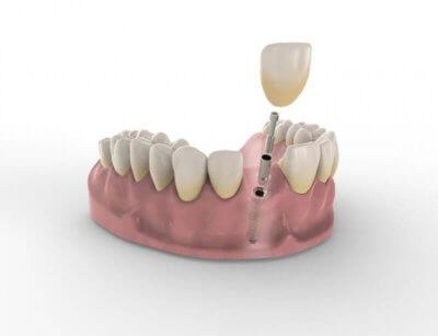 3D-Visualisierung von Zahnimplantat