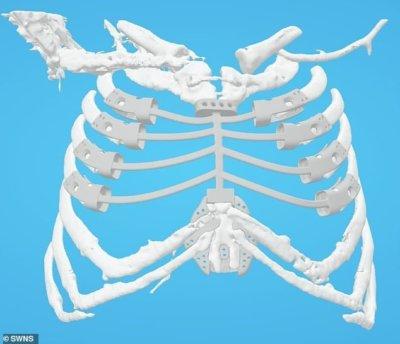 3D-Druck Brustbeinimplantat im Körper (grafisch dargestellt)