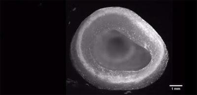 Linke Herzkammer aus dem 3D-Drucker