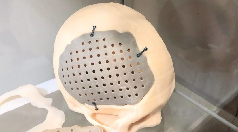 Evonik investiert Millionenbetrag in chinesisches 3D-Druck-Start-up Meditool