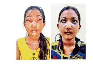 Bibhabari Samal vorher und nachher