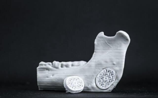 3D-Druck von Implantaten