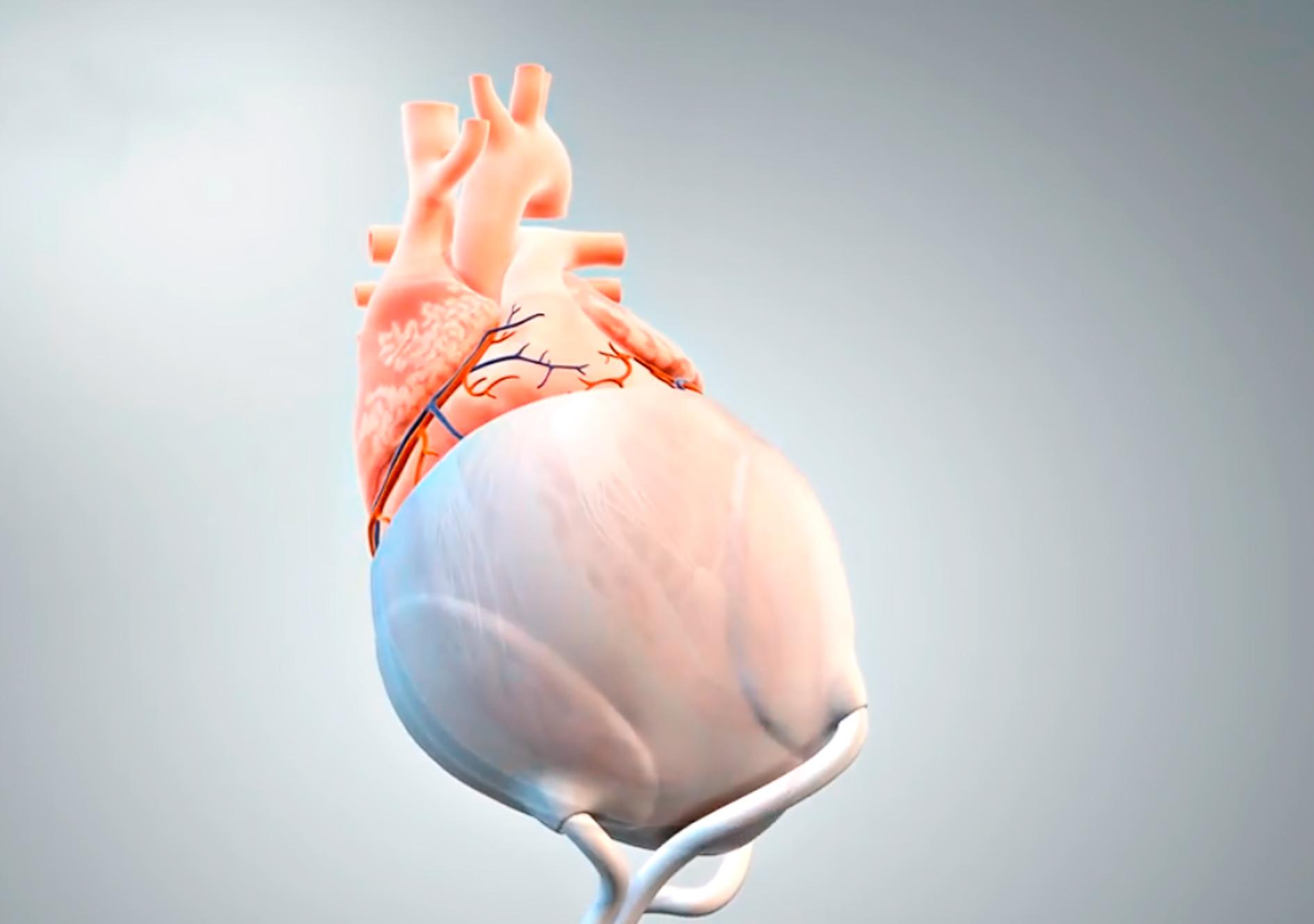 Darstellung des Implantats am Herzbeutel