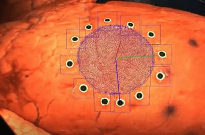 3D-Druck an Organen direkt