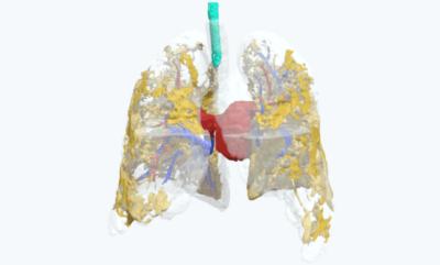 3D-Modell der Lunge eines COVID-19-Patienten