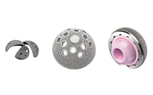 Implantate und Prothesen aus dem 3D-Drucker