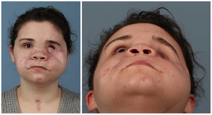 Gesicht der Patientin nach der OP