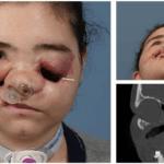 Patientin nach Schussverletzung