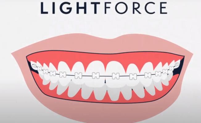 Lightforce Zahnspange aus 3D-Drucker