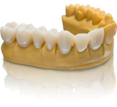 Zähne aus VarseoSmile von BEGO