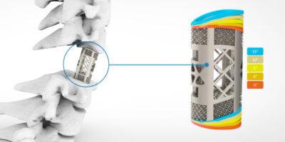 3D-Druck von Wirbelsäulenfusionskäfigen bei der Huaxing Group