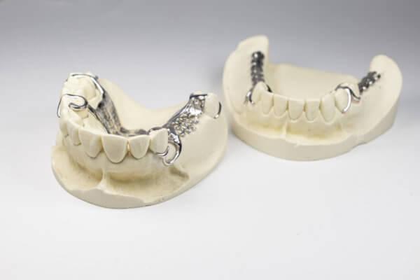 Gebiss mit Zahnprothese